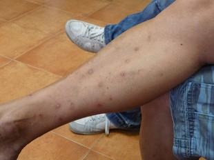 Efectes de les picades de mosquit tigre a la cama d'un jove de Calella. T.M