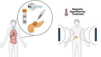 Un estudi usarà nanopartícules per tractar el càncer de pàncrees avançat