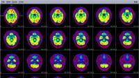 Imatges de la ressonància magnètica d'un cervell